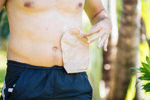 Ostomy bags help to lead an active life